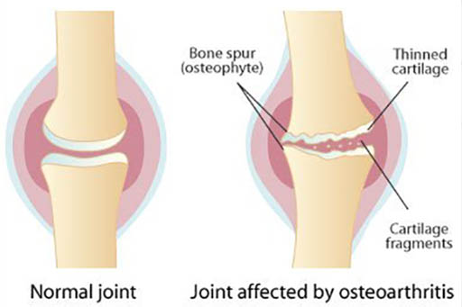 Osteoarthritis in dogs and cats